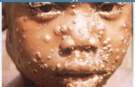 Monkey pox spreads to Lagos, 5 other states