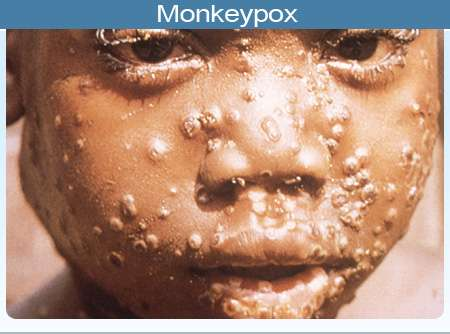 Monkey pox spreads to Lagos, 5 other states